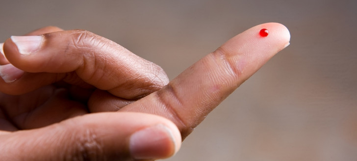 Une goutte de sang du patient suffit pour effectuer un test rapide d'orientation diagnostique (TROD).